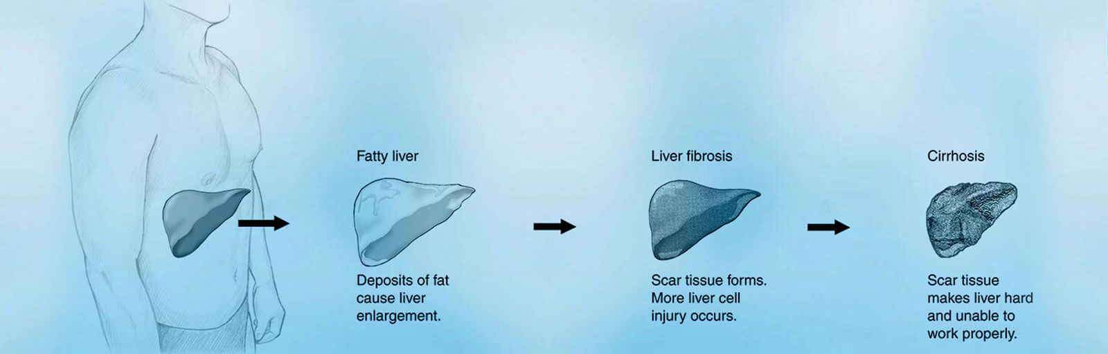 Cirrhosis Liver Stages