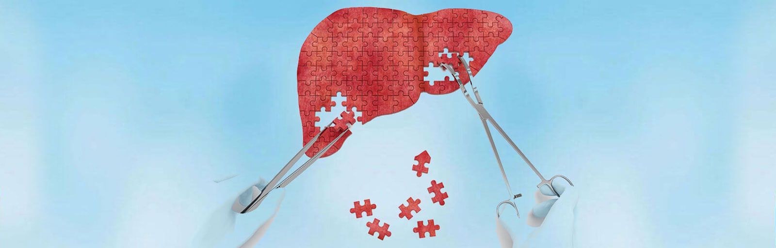 Holistic Treatment for Chronic Liver Diseases